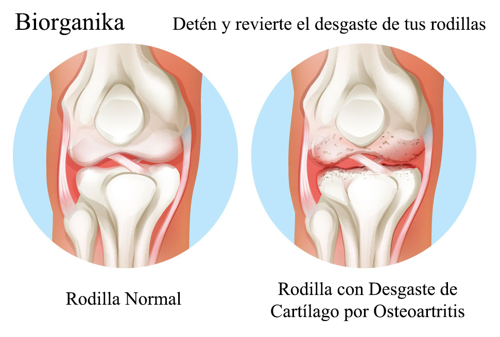 knee_arthritis